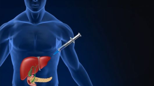 New diabetes treatment would turn liver cells into insulin-producers
