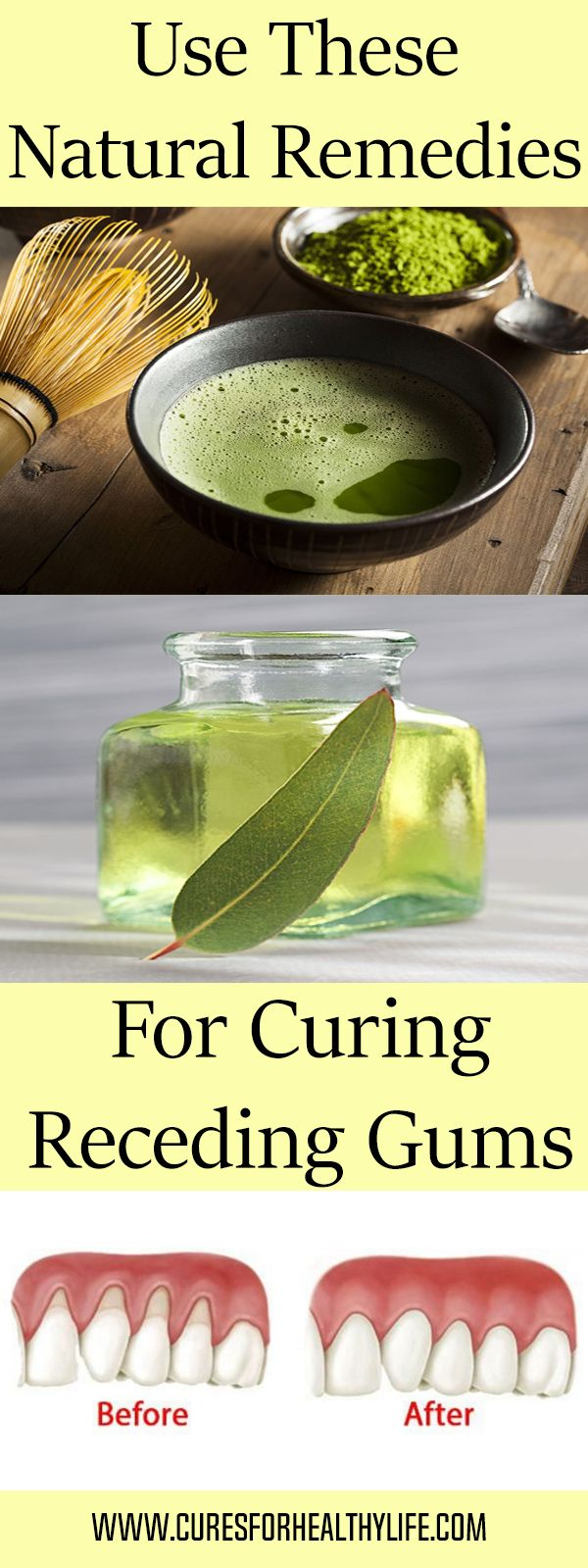 Use These 4 Natural Remedies For Curing Receding Gums