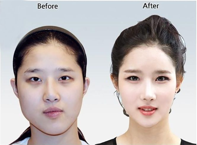 Japanese Facial Massage At Home Bring Back That Firm