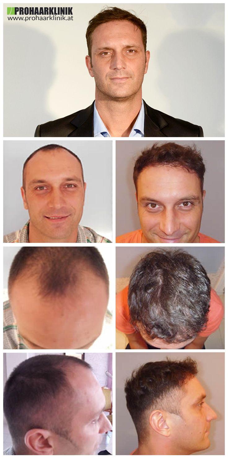 21 best studio 6 images on pinterest hair transplant surgery