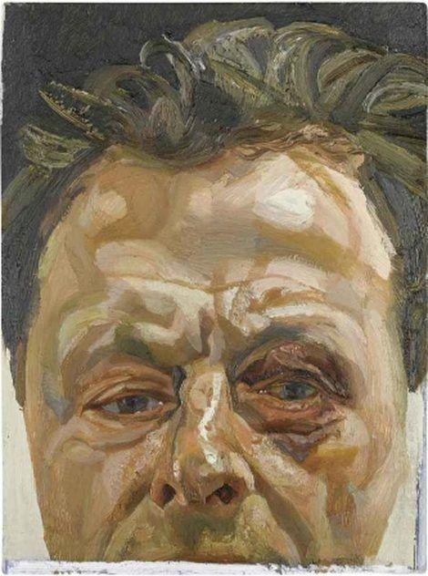 Lucian Freud, Self Portrait with a black eye. Ok. 1978 on ArtStack #lucian-freud #art