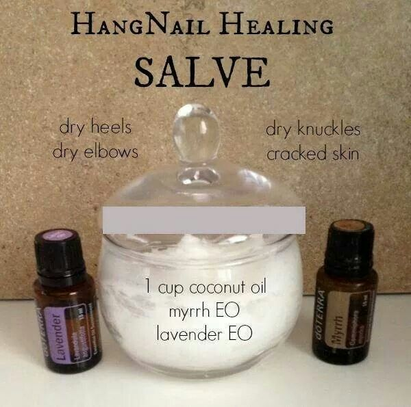 Contact me to learn more about essential oils. 5168176457 or visit my website at www.pureessentialhealing.com