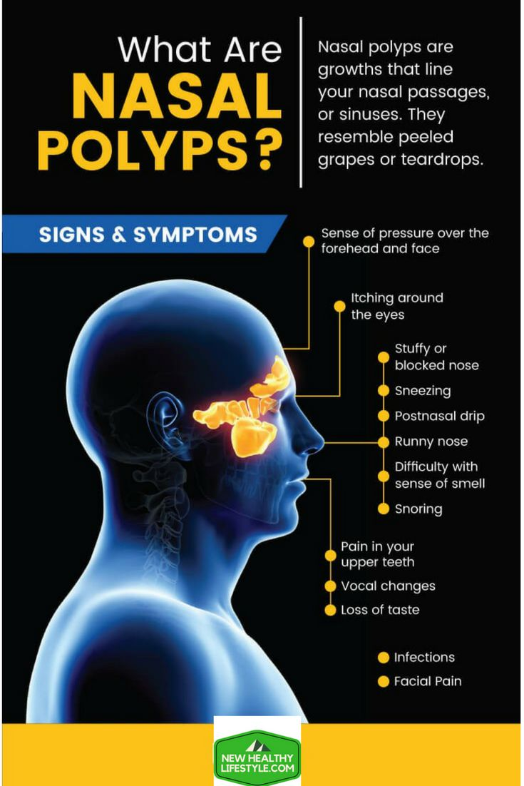 NASAL POLYPS: 19 NATURAL TREATMENTS & LIFESTYLE CHANGES `