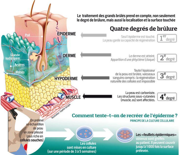 Grands brûlés:le défi de la peau de remplacement | Actualité | LeFigaro.fr - Santé