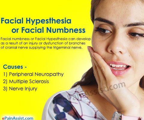 damaged facial nerve remedy