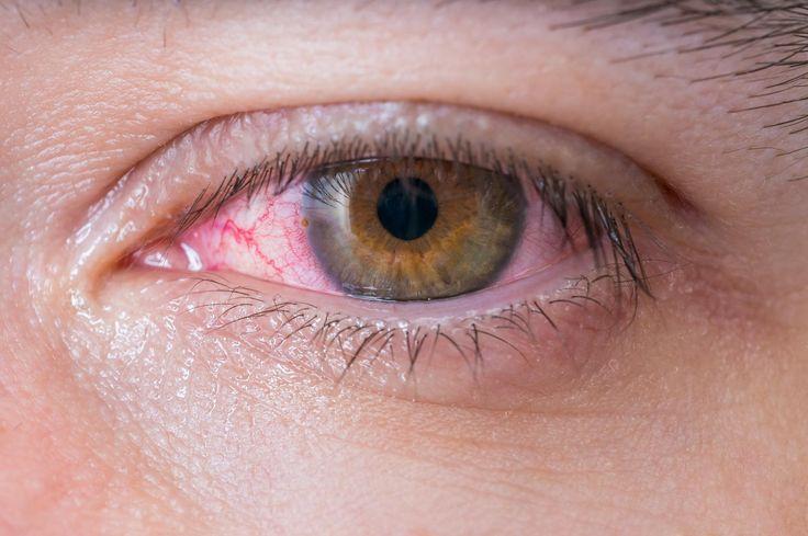 Nicht zu unterschätzen: Das müsst ihr jetzt über die Augengrippe wissen!