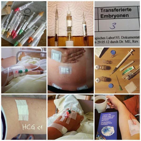 Endometriose und 4. ICSIs: Endlich schwanger !
