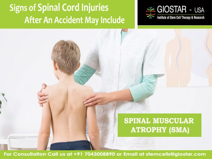 #Stem #Cell #Treatment of #Spinal #Muscular #Atrophy (SMA)  Know more : https://www.giostar.com/Therapy/spinal-muscular-atrophy-sma/ Email : stemcells@giostar.com