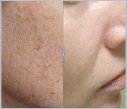 Light-based skin treatments work fast to fade age spots and sun damage from the face and body. Light is used to target and remove unwanted pigment. Treatment sessions take just minutes and result in clearer, younger-looking skin with minimal downtime and fabulous results.