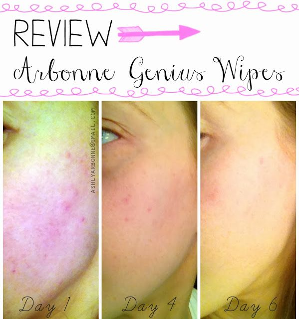 REVIEW | Arbonne Intelligence Genius Nightly Resurfacing Wipes  Do you have acne? Uneven skin tone? Wrinkles? Fine Lines? Sun spots? Acne scaring? THIS is the product for YOU!!! All natural and safe Retinoid product with results you would get at the dermatologist doing chemical peels, microderm abrasion and RetinA treatments...but without the down time! https://www.facebook.com/crystalarbonneIC