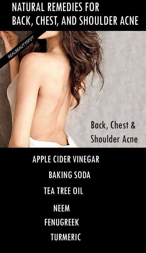 6 Natural Remedies For Back, Chest, And Shoulder Acne