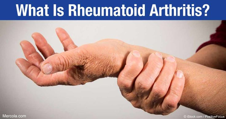 Read up on the basics of rheumatoid arthritis, a devastating disease that can spell disaster for your joints. http://articles.mercola.com/rheumatoid-arthritis/what-is-rheumatoid-arthritis.aspx