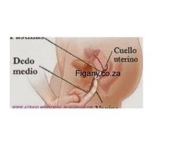 DR HOPE WOMEN,S ABORTION CLINIC IN RANDBURG,SANDTON 0633523662 SAFE EFFECTIVE PILLS ON SALE 50% OFF
