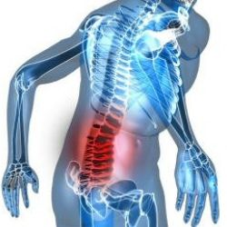TREATMENTS FOR ARTHRITIS OF THE SPINE OR SPINAL ARTHRITIS