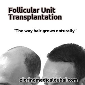 Follicular Unit Transplantation (FUT) is a procedure where hair is transplanted exclusively in its naturally occurring groups of one to four hairs, the way hair grows naturally. http://www.zieringkuwait.com/fut-hair-transplant/