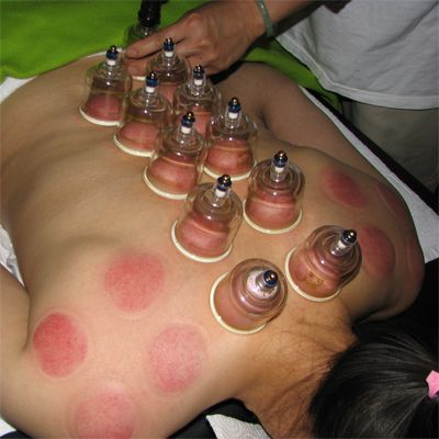 The ancient therapeutic art of fire cupping has been ...