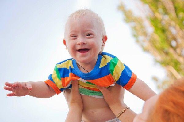 Cresterea unui bebe cu Sindrom Down