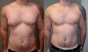 Gynecomastia Treatment - How To Get Rid of Man Boobs<