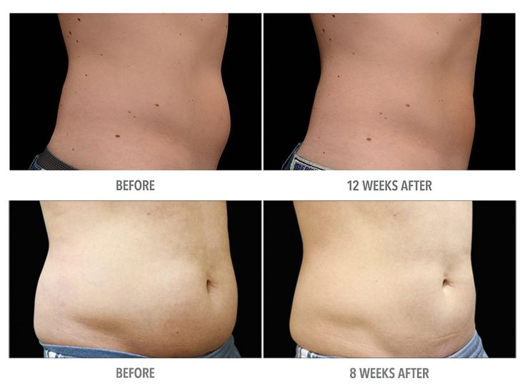 28 best images about Coolsculpting for Fat Loss on ...