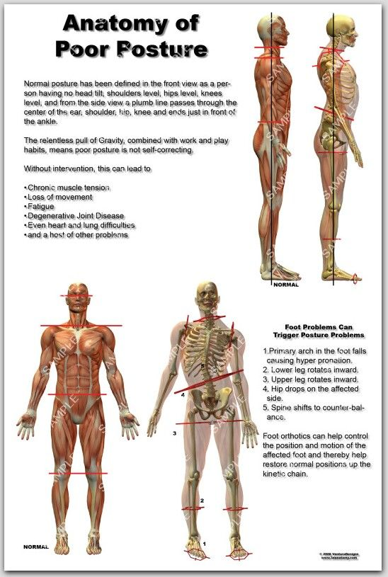 good posture poster - Google Search