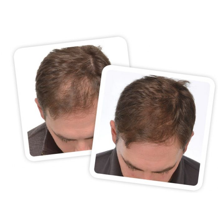 Best hair laser in India to buy best price in online shopping to refer