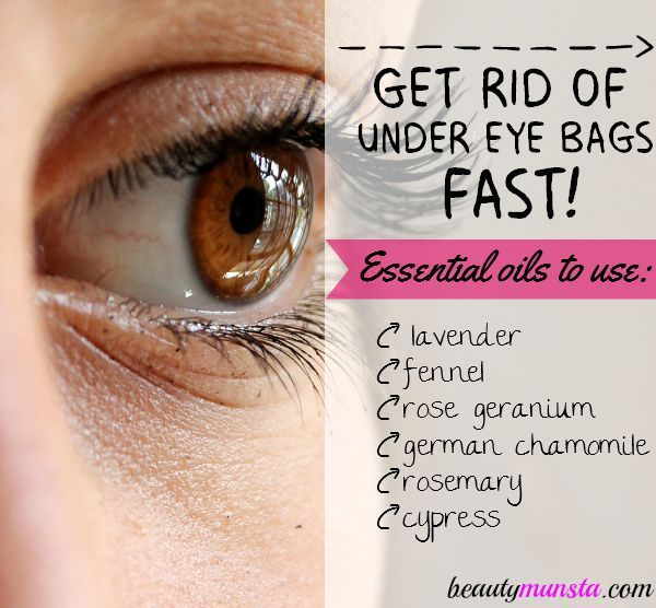 Find out how to use these 6 essential oils for under eye bags - recipes included!
