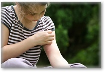 Are YOU allergic to mosquito bites? Find out!