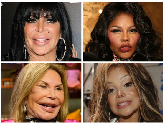 Which celebrity has had the WORST plastic surgery?! List them in order!   a) Big Ang b) Lil' Kim c) Mama Elsa d) La Toya Jackson