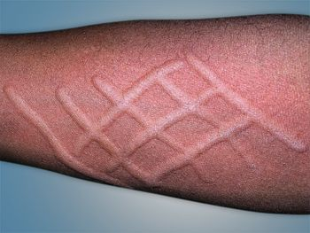 17 Best images about Hives (Urticaria) Treatment on ...