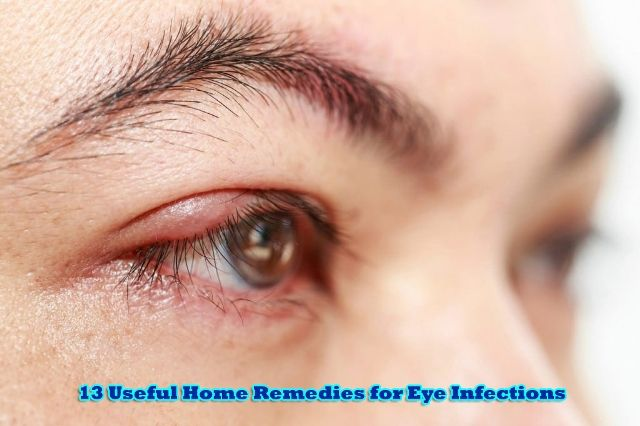 13 Useful Home Remedies for Eye Infections - Home Remedies