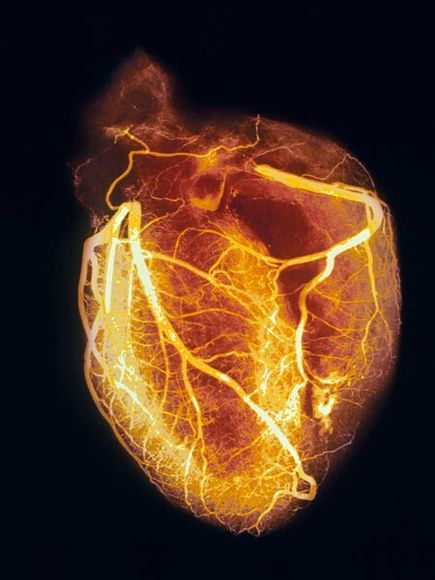 Angiogram of heart- the brightly colored lines are blood vessels, dyed for the procedure. This is an unusual pic, you normally just see the lines and a very faint outline of the chambers, but I do love this!