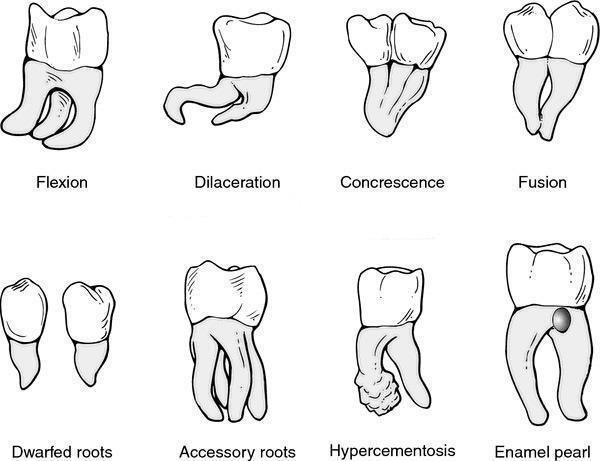Visual representation of tooth root disorders.