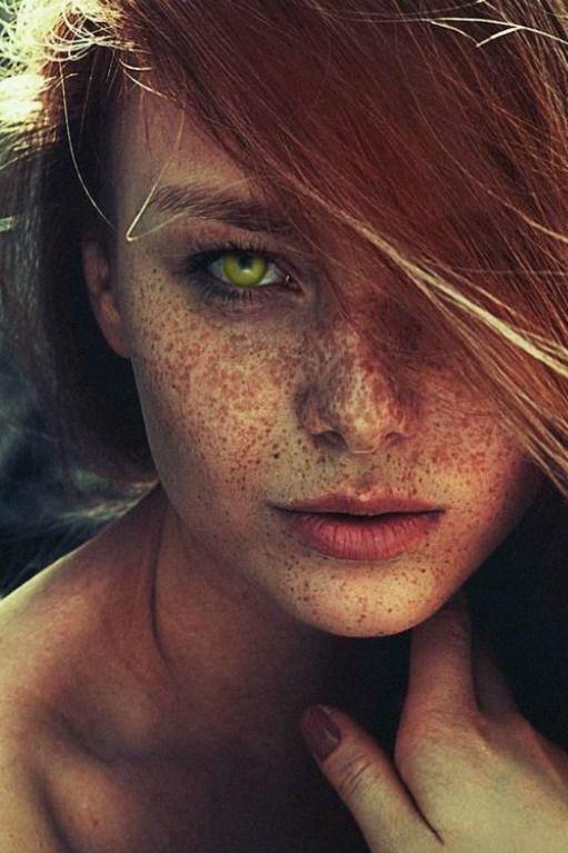 Freckle facial 11