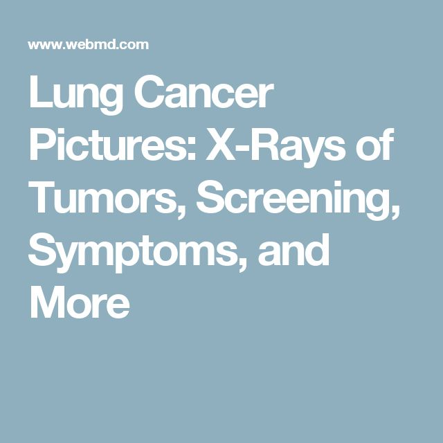Lung Cancer Pictures: X-Rays of Tumors, Screening, Symptoms, and More