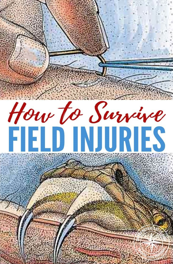 How to Survive Field Injuries — From snake bites to sore teeth, this guide will help you tackle almost any accident. All of these injuries are quite common and a little trip to the doctor can normally sort these out! What if there were no doctor? What if  http://getfreecharcoaltoothpaste.tumblr.com