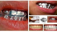 Easy home tip to whiten your teeth #tips #beauty #teeth-whitening