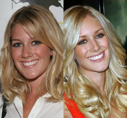 Heidi Montag Nose Job Plastic Surgery, Rhinoplasty Before And After Pictures