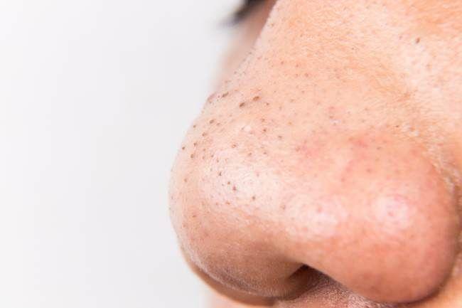 Los 4 remedios infalibles para remover las espinillas de la nariz