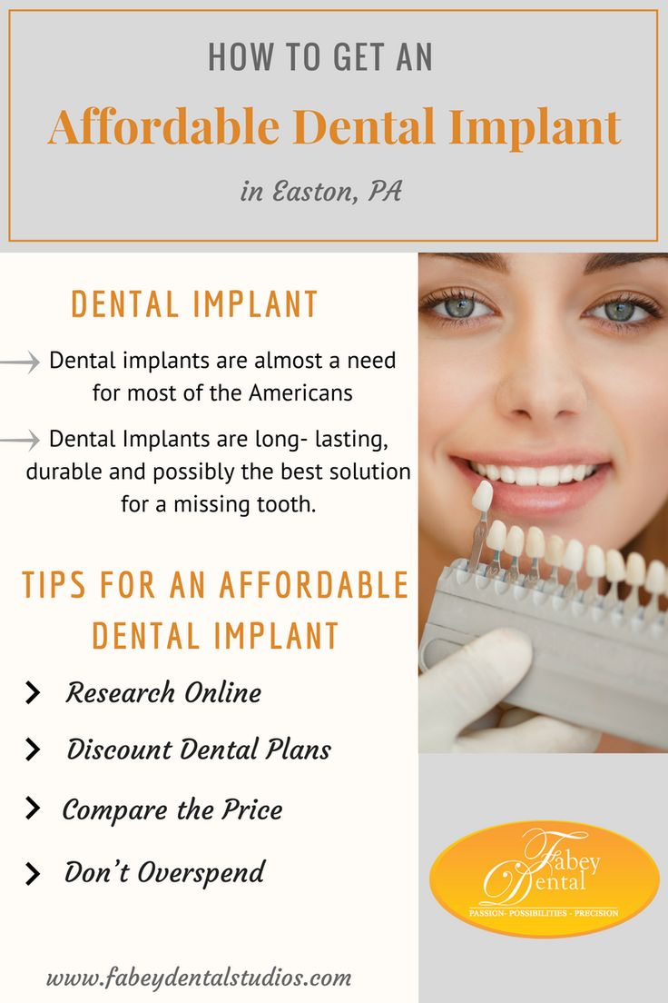 How to Get an Affordable Dental Implant in Easton