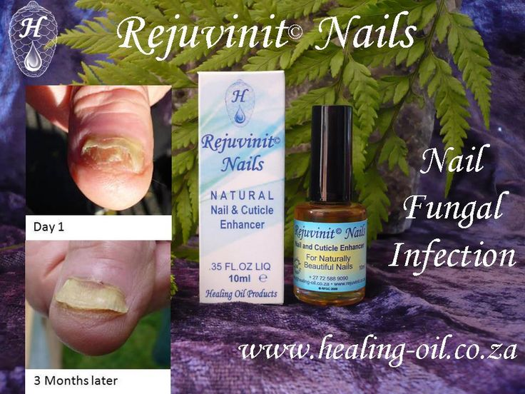 Rejuvinit© Nails the Original Natural Nail Oil - Ideal for FUNGAL INFECTED nails and toenails. www.healing-oil.co.za