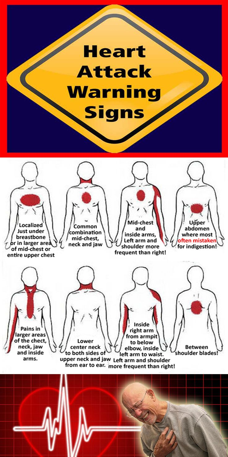 Heart Attack Warning Signs. For illustration only. Symptoms may vary from person to person!