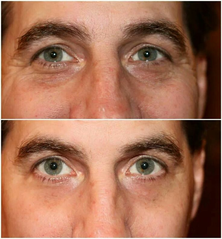 Instantly Ageless works on men too! Amazing results!!! www.fillinitink.jeunesseglobal.com