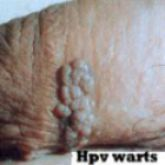 1000+ images about HPV and other such things on Pinterest ...