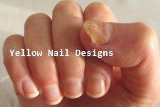 23 Great Yellow Nail Art Designs 2019 #yellownaildesign #naildesigns   – Little Yellow Cab Nails