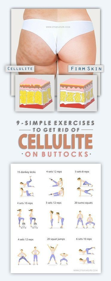 9 Simple Exercises To Get Rid of Cellulite On Buttocks * More info: | http://qoo.by/2mtz
