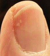 Vitamin B12 and Fingernails | Health Boundaries--don't know how accurate all this is, but very interesting