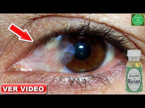 Mejora La Vista Borrosa Sin Lentes, Remedio de áloe vera Para Aumentar La Visión Naturalmente - YouTube