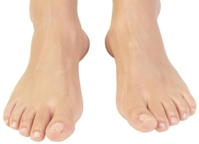 What Kind of Shoes Should People With Osteoarthritis Wear?