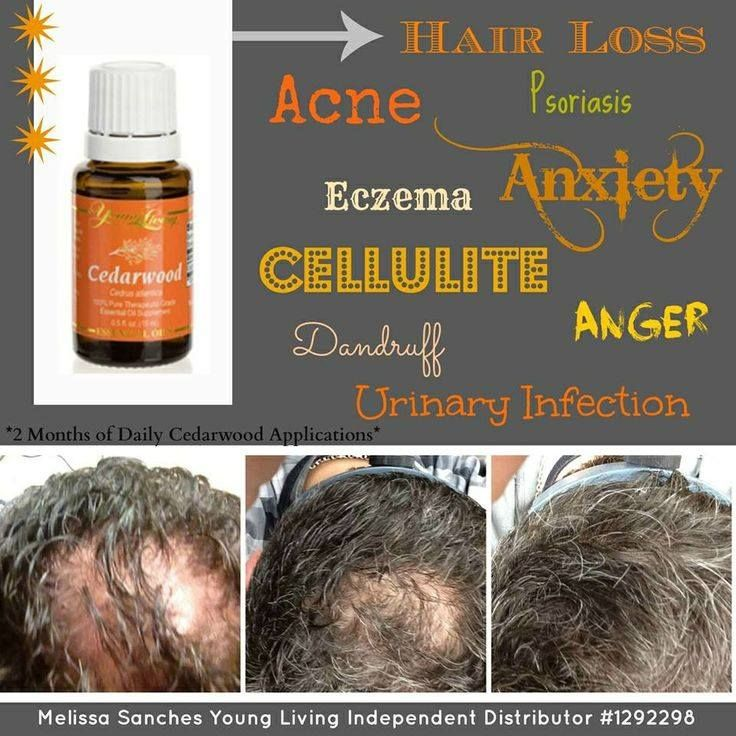 Cedarwood in your hair! pls visit me @ https://www.facebook.com/pages/The-Creators-Healing-Oils/1436661629904608