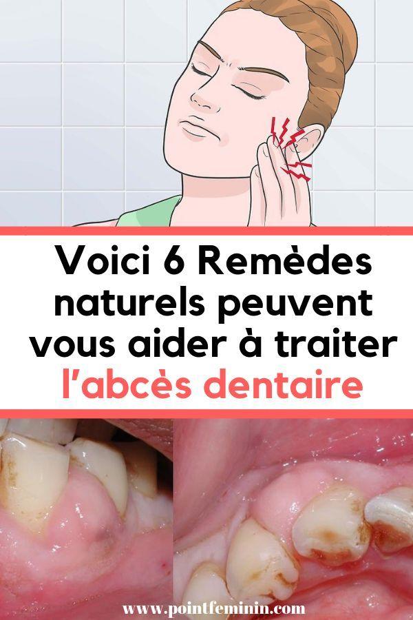abcès bouche traitement naturel